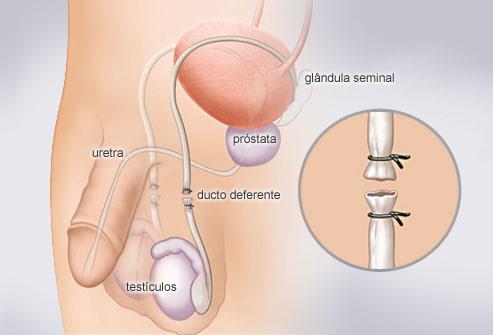 sistema reprodutor masculino cirurgia de vasectomia
