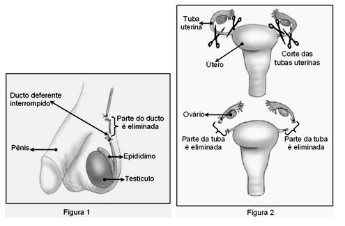 vasectomia e ligação tubária