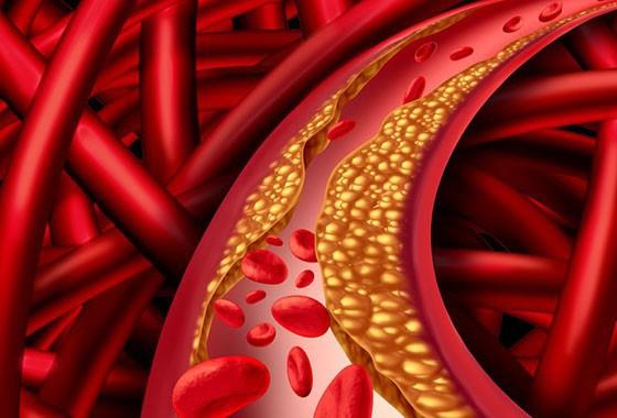 interior de um vaso sanguíneo - doenças crônicas