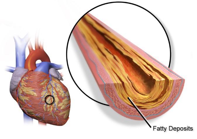 Artéria - doenças crônicas