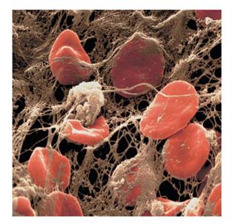 Elementos do coágulo sanguíneo